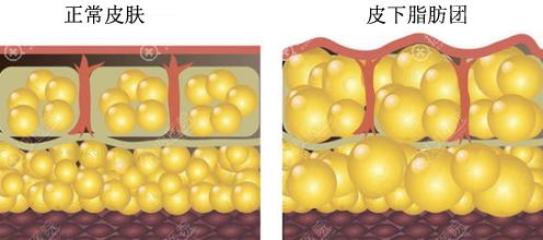 全面部自体脂肪填充过量可能出现脸下垂
