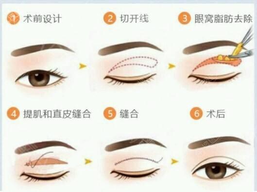 肿泡眼割双眼皮过程示意图