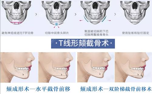 通过截骨术改善下巴形态