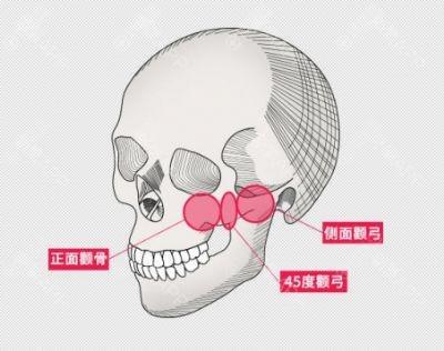 颧骨整形会导致面部下垂吗?