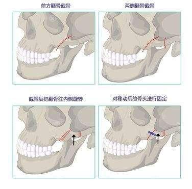 颧骨手术示意图