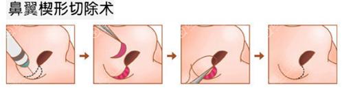 鼻翼楔形切除术手术过程
