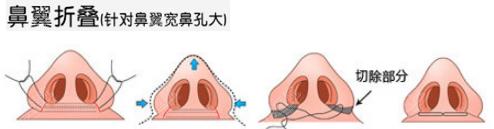 鼻翼折叠缩鼻翼手术过程