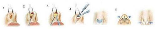 鼻头缩小手术过程示意图