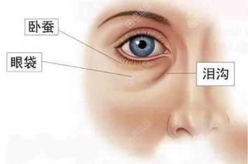 眼袋、卧蚕、泪沟位置示意图