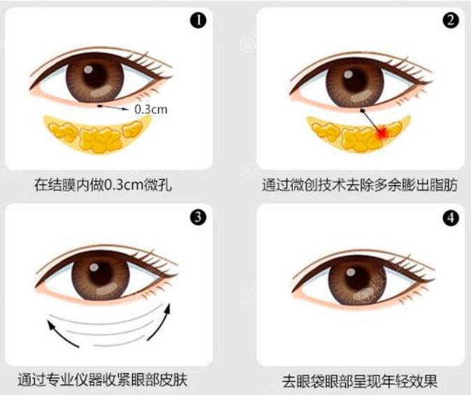 祛眼袋手术步骤示意图