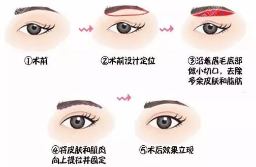 提眉手术过程示意图