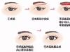 """改善面部松垂的眼部年轻化抗衰搭档""""提眉+祛眼袋""""你造吗?"""