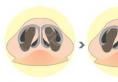 隆鼻手术后鼻头发红怎么办,是什么原因造成的?