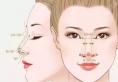 肋骨鼻术后不满意想做肋骨鼻修复鼻子肋骨可以二次用吗