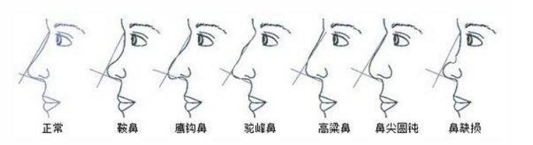 需要做隆鼻整形的鼻型示意图
