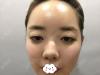 我在韩国爱我整形找朴范镇做面部轮廓失败修复手术的经历及心得