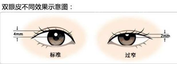 标准双眼皮和过窄双眼皮对比图