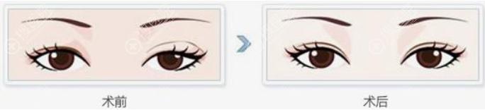 双眼皮一宽一窄修复前后效果对比图