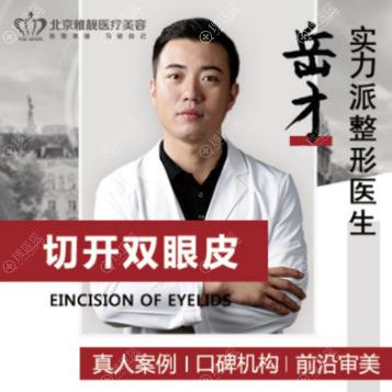 北京雅靓双眼皮医生岳才