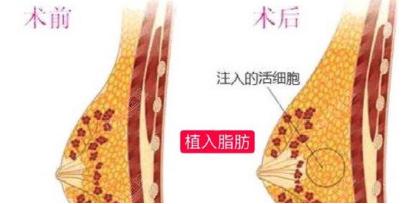 隆胸假体取出后可同时进行自体脂肪丰胸手术