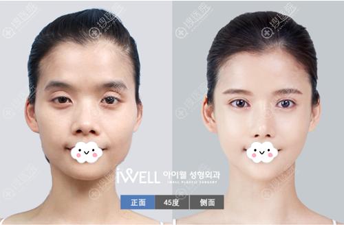 韩国iWELL爱我整形医院面部轮廓整形案例
