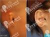 韩国profile讲小耳症用肋软骨人工骨哪种好及耳畸形整形多少钱