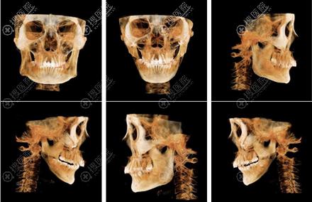 在韩国GNG整形做完面部轮廓后的CT对比