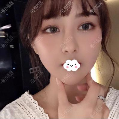 韩国女神权升基下颌角磨骨一个月效果图