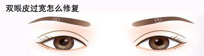 双眼皮做宽了能修复吗