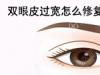 过宽的双眼皮拆线后能变窄吗?是不是要做双眼皮修复手术改善