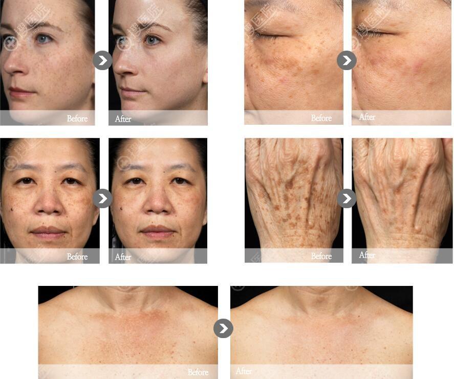 韩国童颜中心色素激光治疗效果对比图