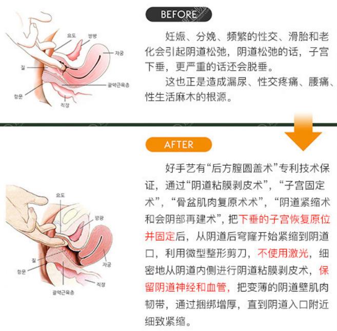 韩国好手艺后方膣圆盖术前后改善对比