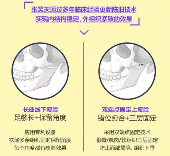 北京圣嘉新张笑天长曲线磨骨瘦脸特色