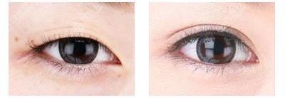 单眼皮到双眼皮的恢复效果