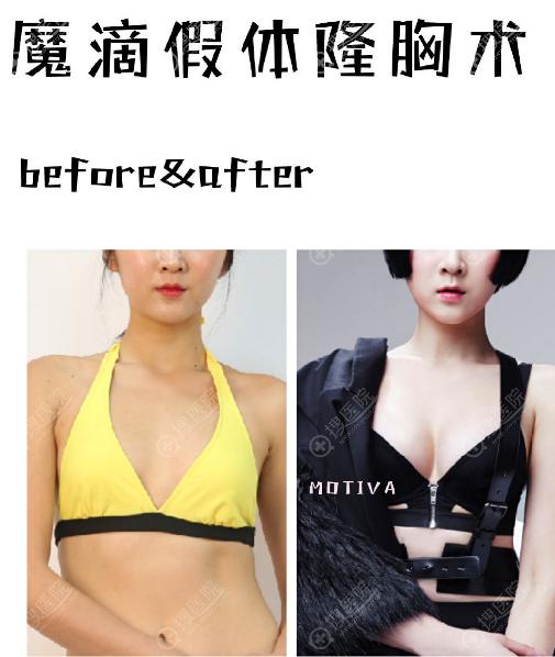 韩国佰诺佰琪魔滴假体隆胸案例