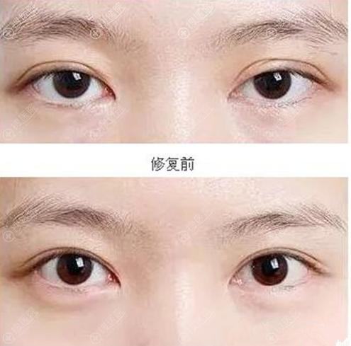韩国清潭first双眼皮修复案例