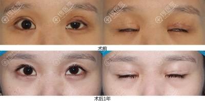 双眼皮修复前后恢复对比图