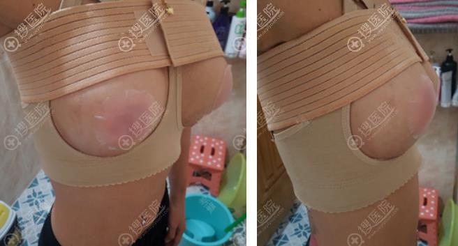 韩国艾恩iron整形医院隆胸术后效果