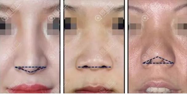 短鼻类型示意图