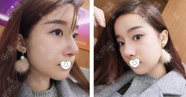 韩国ID整形医院磨骨去下颌角术后9天