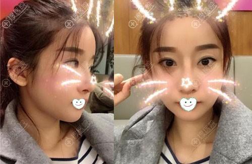 韩国ID磨骨手术怎么样?脸部轮廓真人案例