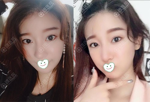 韩国ID整形医院颧骨+下颌角术后1年效果图