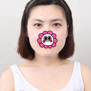 到韩国原辰做面部轮廓前照片