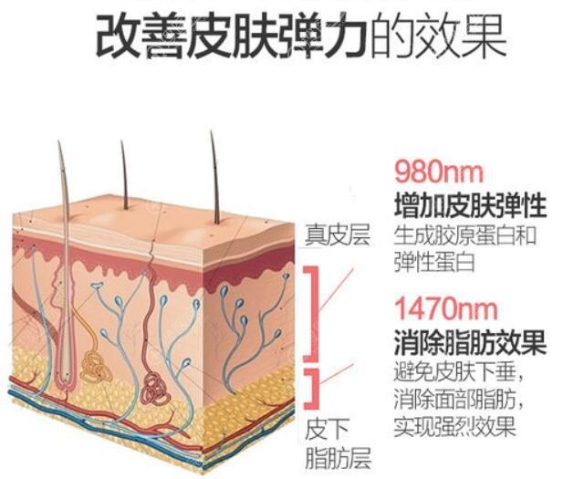 韩国艾恩去除双下巴技术优势