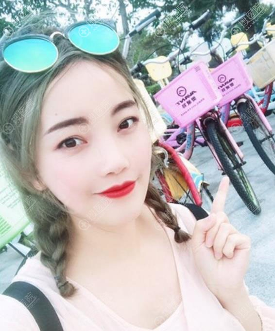 韩国ID整形医院突嘴矫正术后2年恢复效果图