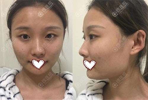 韩国ID整形医院轮廓四件套+眼鼻+脂肪填充案例