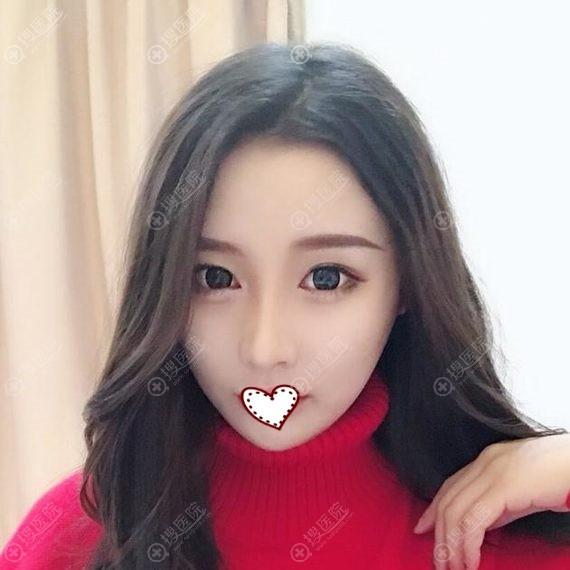 韩国ID整形医院脸部轮廓真人案例