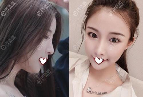 案例证明韩国id整形医院价格与脸部轮廓整形成正比