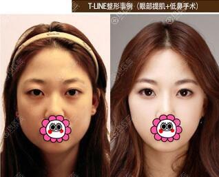 韩国菲斯莱茵李泰喜眼鼻整形案例