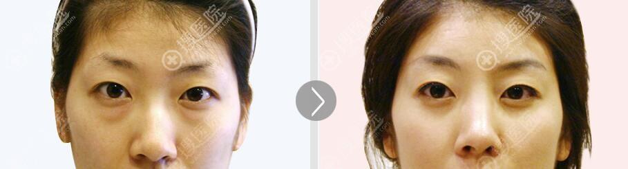 眼底脂肪再排对比效果图