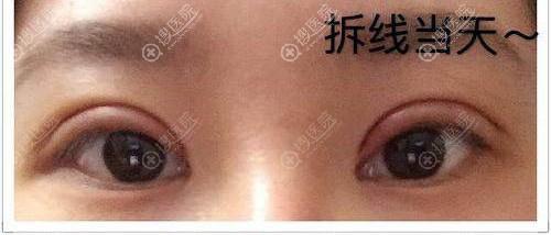 7天拆线后的双眼皮效果