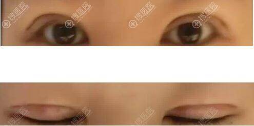 双眼皮消肿10天的样子