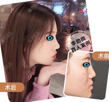 北京柏丽李劲良假体隆鼻综合整形案例