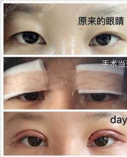 不知道割双眼皮20天是什么样子的来看恢复过程图